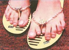 Runa's foot with seven fingers